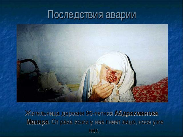 Последствия аварии Жительница деревни 96-летняя Абдрахманова Махиря. От рака...