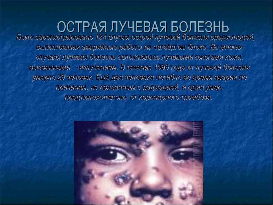 ОСТРАЯ ЛУЧЕВАЯ БОЛЕЗНЬ Было зарегистрировано 134 случая острой лучевой болез...