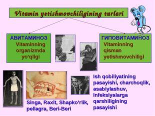 Vitamin yetishmovchiligining turlari АВИТАМИНОЗ ГИПОВИТАМИНОЗ Vitaminning org