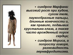 синдром Марфана: высокий рост при худом, сухом теле, паукообразные пальцы, дл