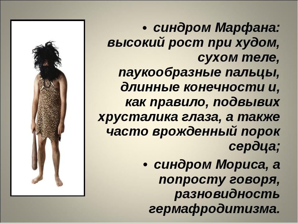 синдром Марфана: высокий рост при худом, сухом теле, паукообразные пальцы, дл...