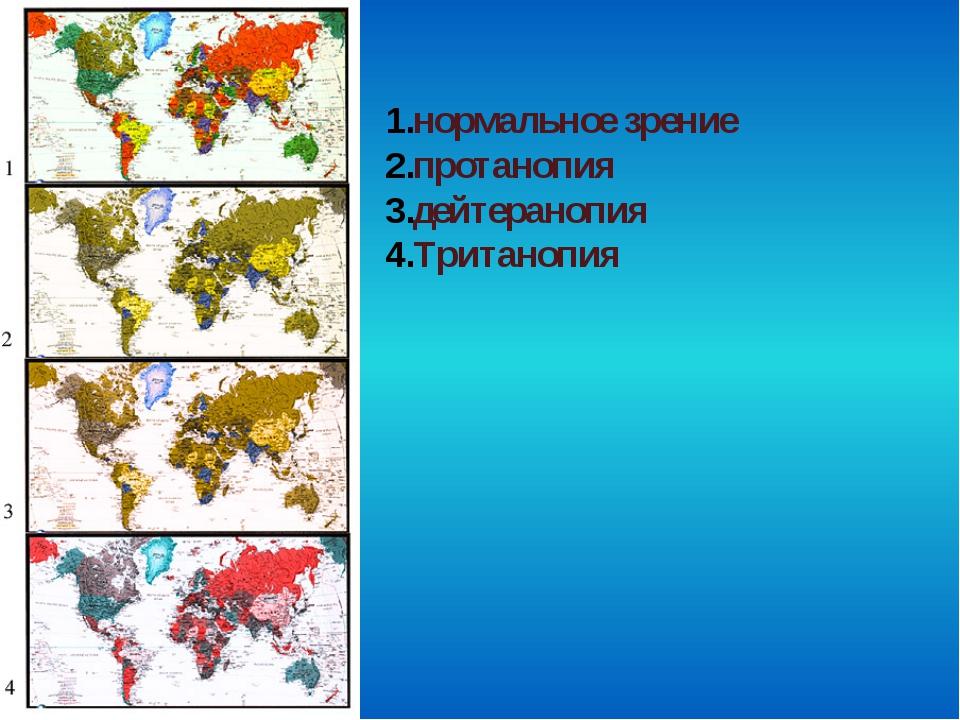 нормальное зрение протанопия дейтеранопия Тританопия