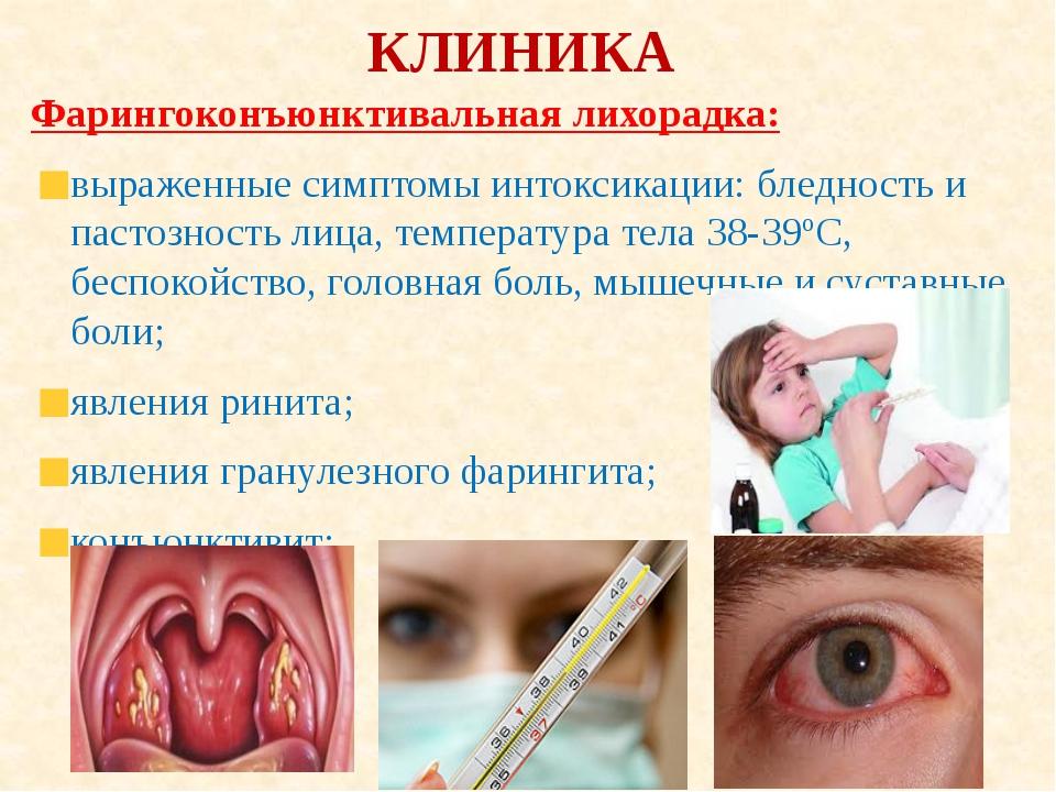 КЛИНИКА Фарингоконъюнктивальная лихорадка: выраженные симптомы интоксикации:...