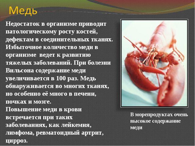 Недостаток в организме приводит патологическому росту костей, дефектам в соед...