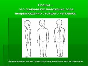 Осанка – это привычное положение тела непринужденно стоящего человека. Формир