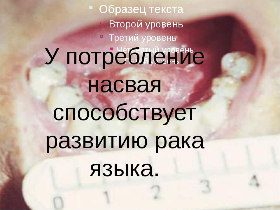 У потребление насвая способствует развитию рака языка.