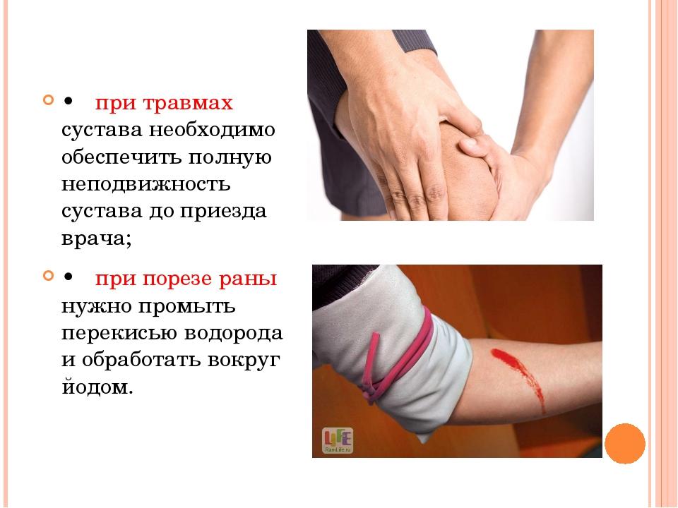 •при травмах сустава необходимо обеспечить полную неподвижность сустава до...