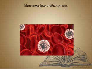 Миелома (рак лейкоцитов).