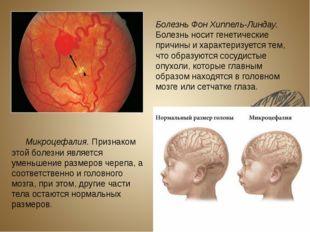Болезнь Фон Хиппель-Линдау. Болезнь носит генетические причины и характеризуе