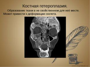 Костная гетероплазия. Образование ткани в не свойственном для неё месте. Може