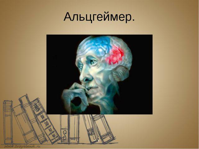 Альцгеймер.