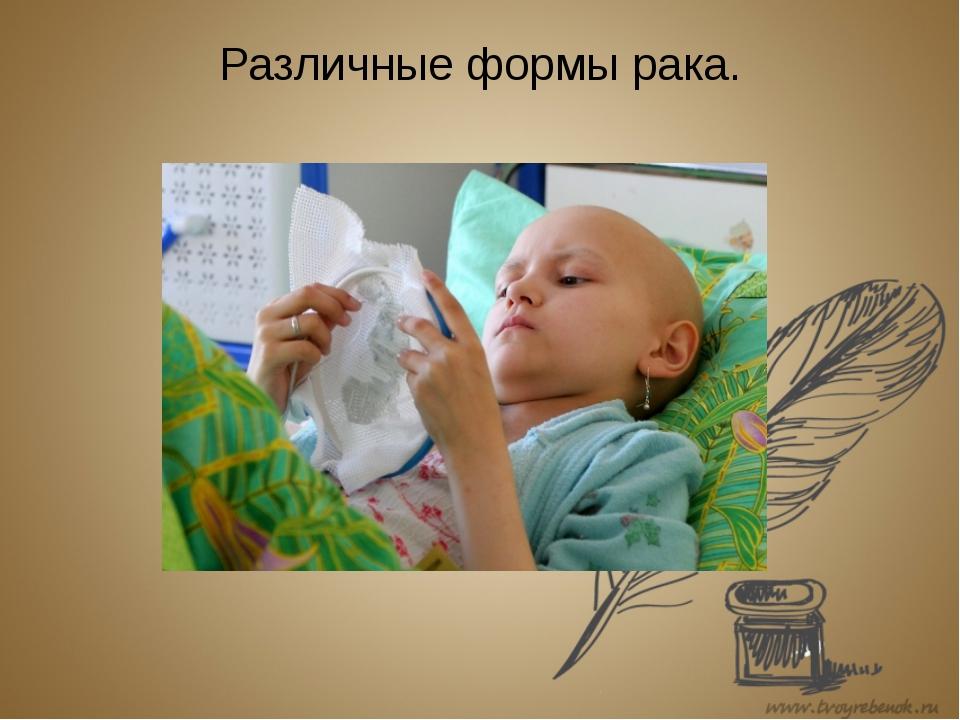 Различные формы рака.