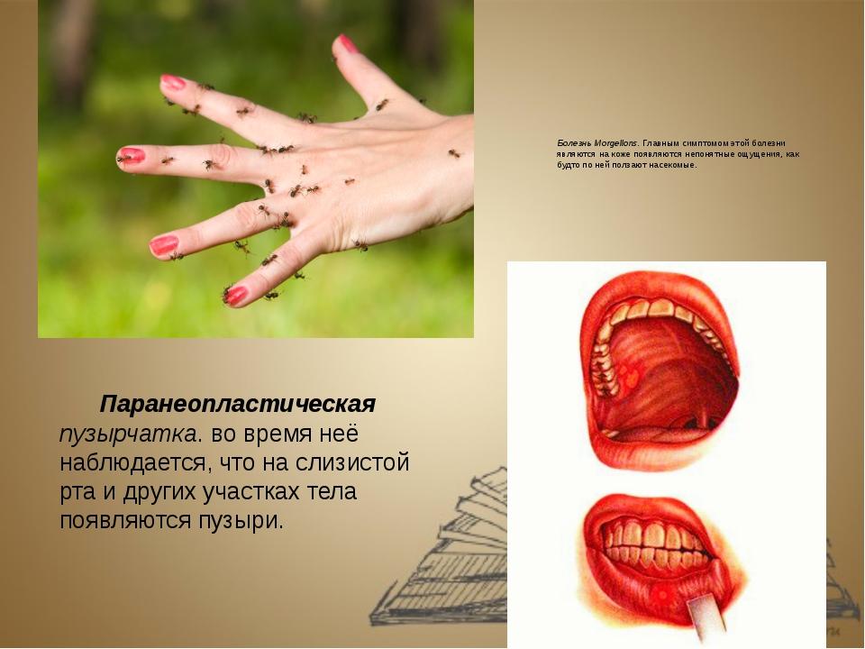 Болезнь Morgellons. Главным симптомом этой болезни являются на коже появляютс...