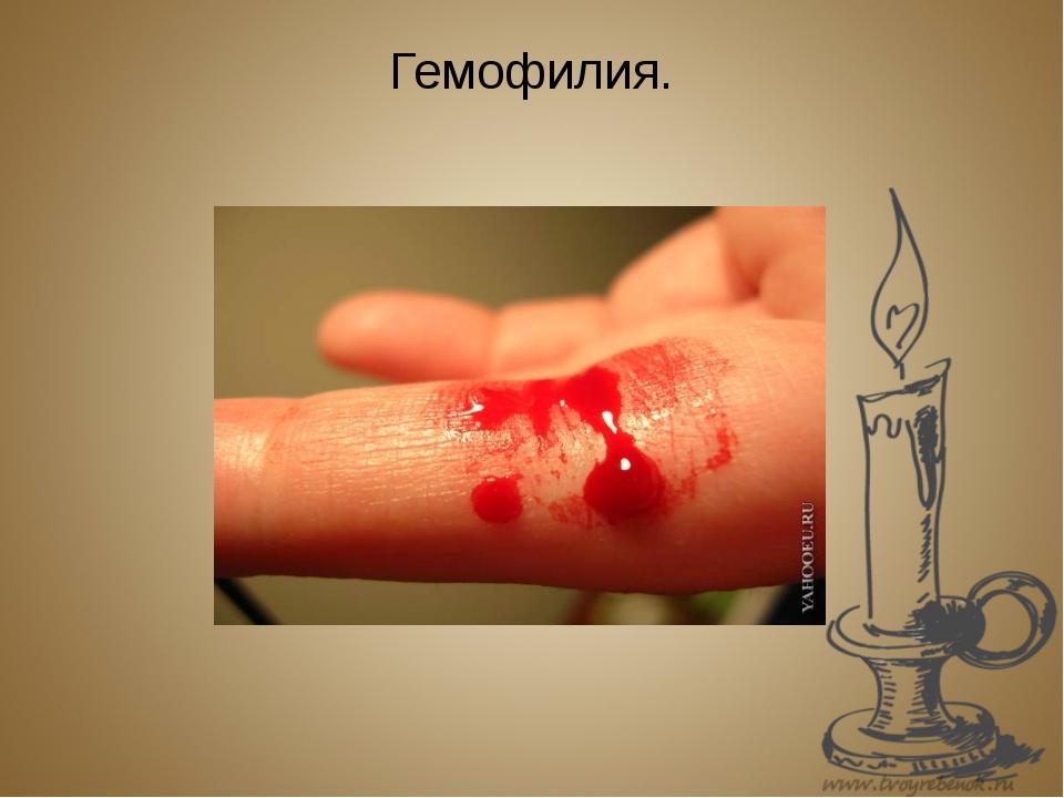 Гемофилия.