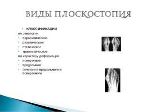 КЛАССИФИКАЦИИ по этиологии паралитическое рахитическое статическое травматиче