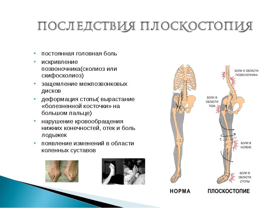 постоянная головная боль искривление позвоночника(сколиоз или скифосколиоз) з...