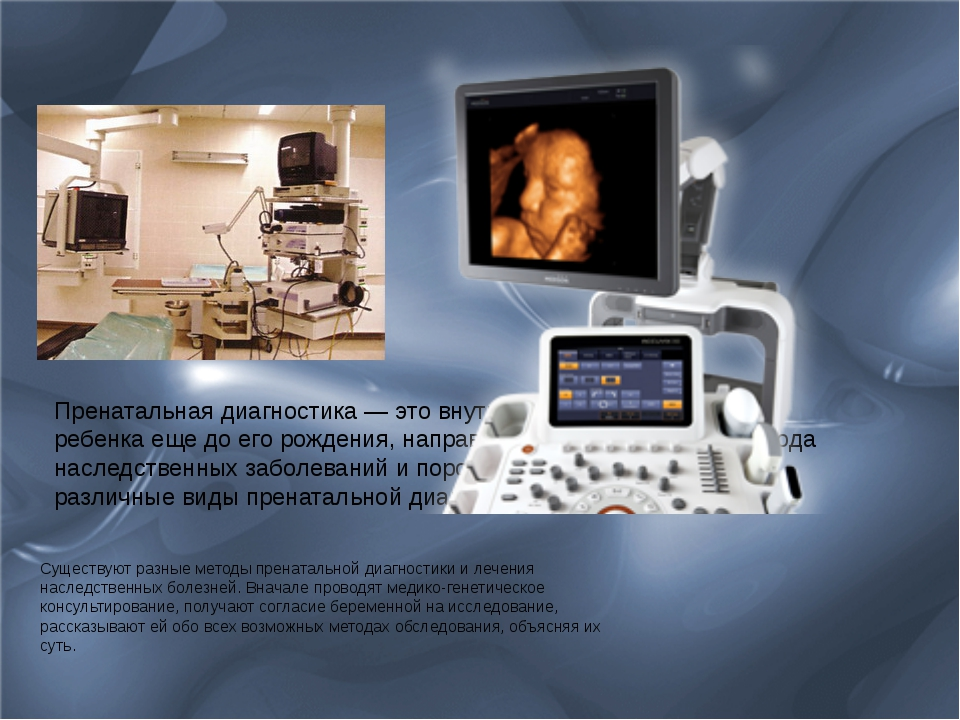 Существуют разные методы пренатальной диагностики и лечения наследственных бо...