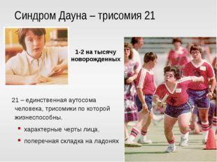 Синдром Дауна – трисомия 21 21 – единственная аутосома человека, трисомики по