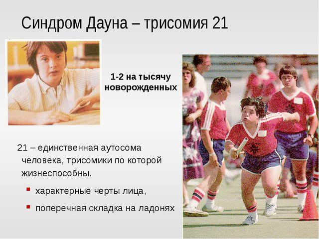 Синдром Дауна – трисомия 21 21 – единственная аутосома человека, трисомики по...