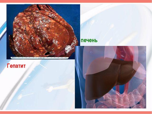 Здоровая печень Гепатит