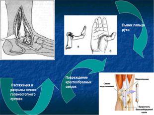 Растяжения и разрывы связок голеностопного сустава Вывих пальца руки Поврежд