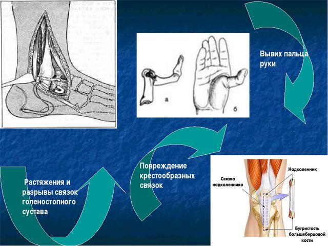Растяжения и разрывы связок голеностопного сустава Вывих пальца руки Поврежд...