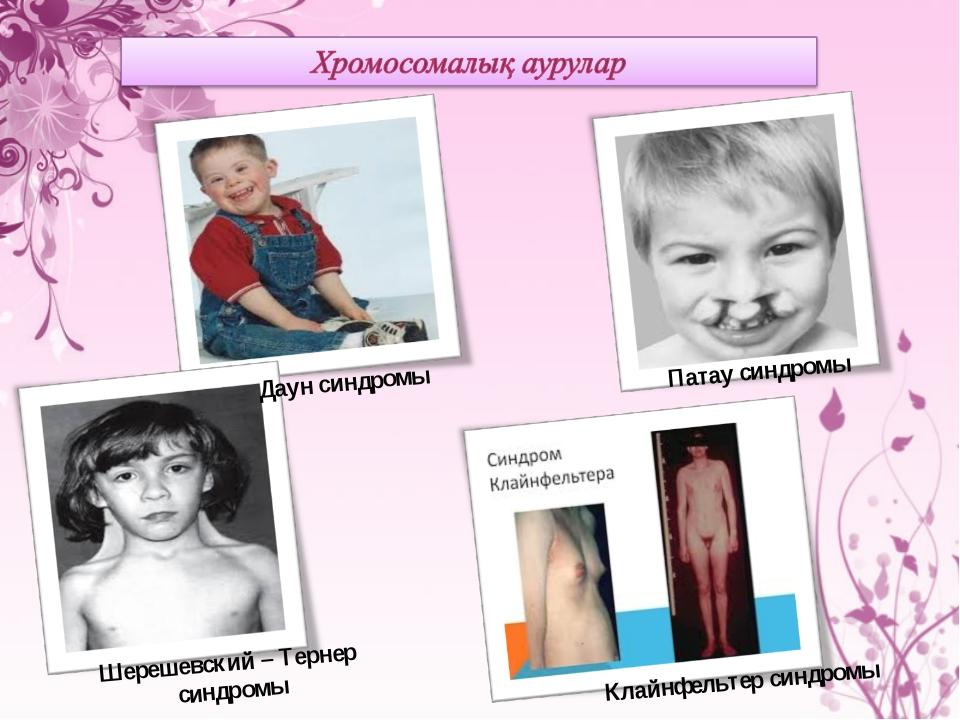 Даун синдромы Патау синдромы Шерешевский – Тернер синдромы Клайнфельтер синдр...