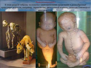 Анатомический раздел В этом разделе собраны экспонаты с анатомическими уродс
