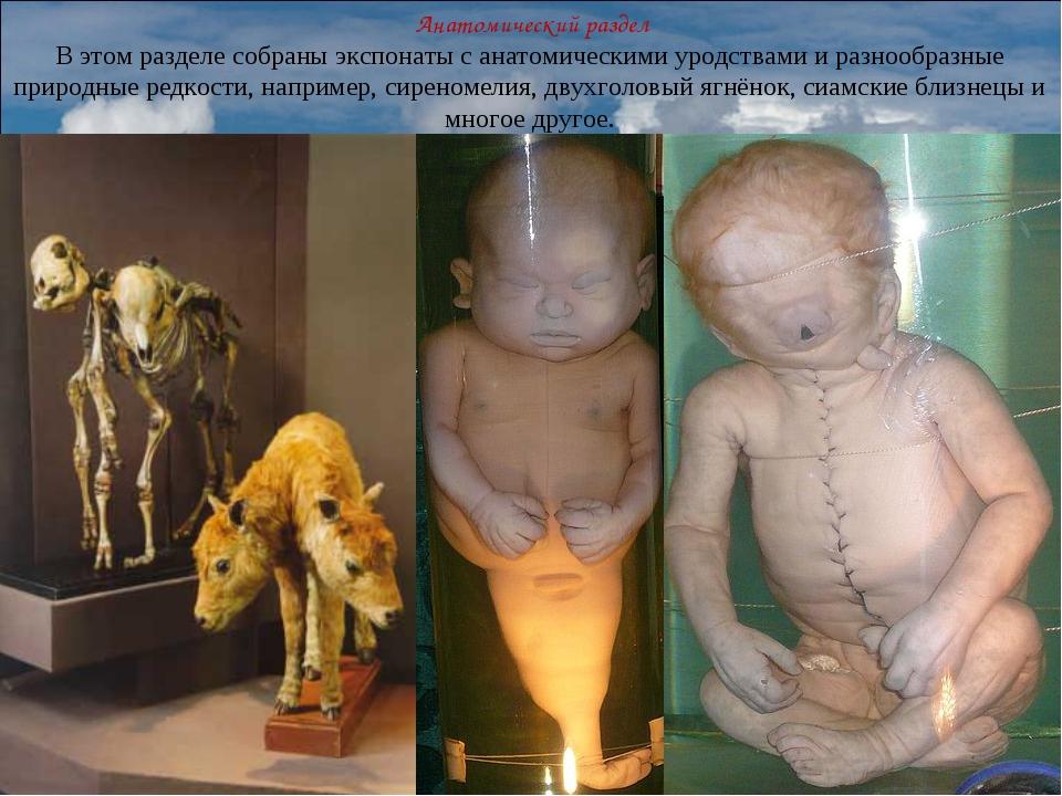 Анатомический раздел В этом разделе собраны экспонаты с анатомическими уродс...