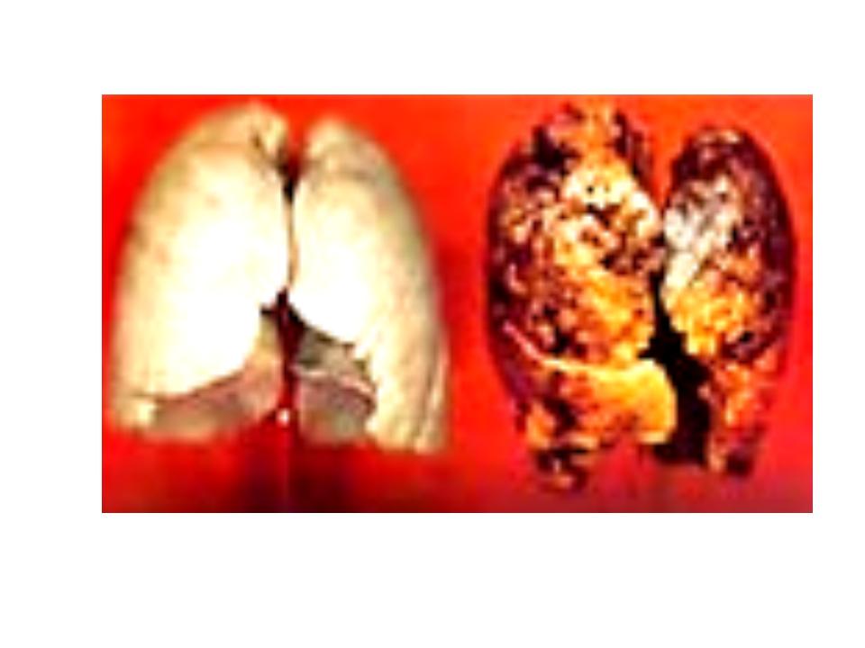 Вот некоторые заболевания, наиболее характерные для табакокурения: - в бронха...