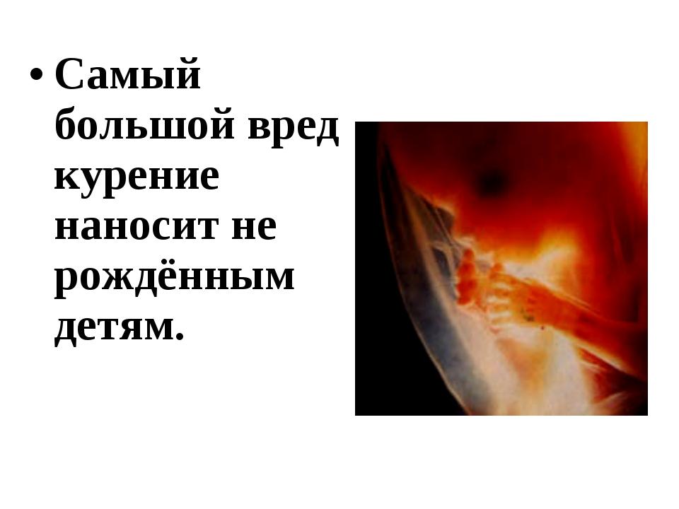Самый большой вред курение наносит не рождённым детям.