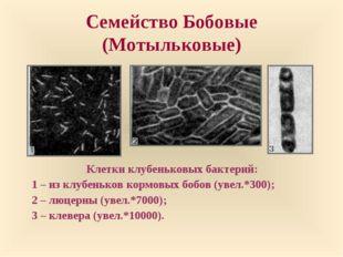 Семейство Бобовые (Мотыльковые) Клетки клубеньковых бактерий: 1 – из клубеньк