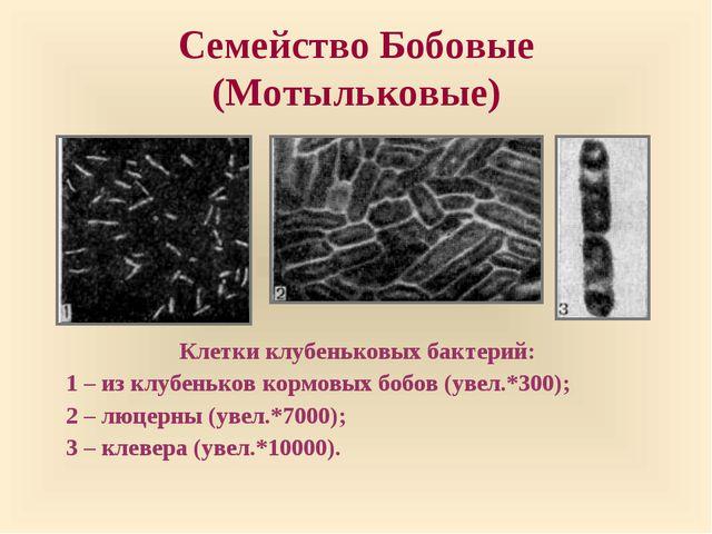 Семейство Бобовые (Мотыльковые) Клетки клубеньковых бактерий: 1 – из клубеньк...
