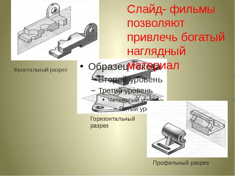 Фронтальный разрез Горизонтальный разрез Профильный разрез Слайд- фильмы позв...