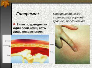 Механизм развития пролежней Гиперемия Поверхность кожи становится горячей кра