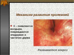 II – появляются волдыри, повреждаются эпидермис и частично дерма Механизм ра