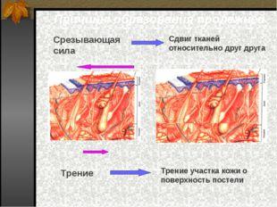 Причины образования пролежней Срезывающая сила Трение Сдвиг тканей относитель