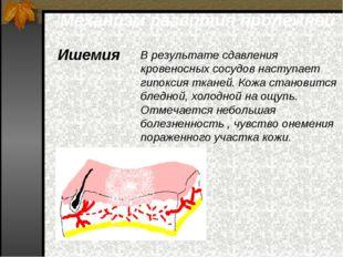 Механизм развития пролежней Ишемия В результате сдавления кровеносных сосудов