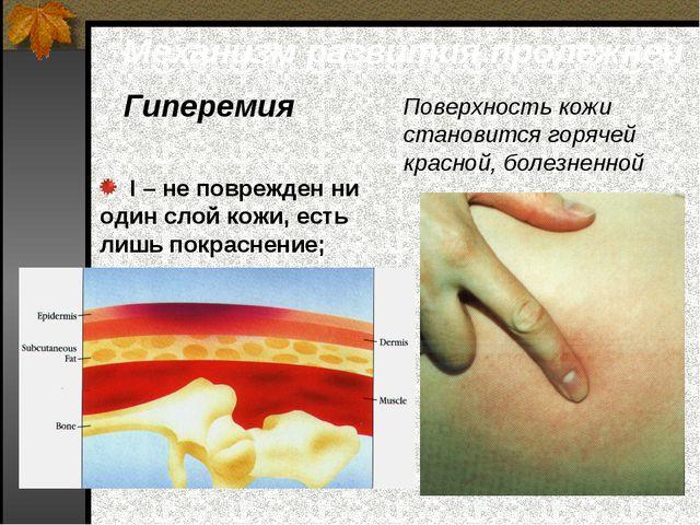 Механизм развития пролежней Гиперемия Поверхность кожи становится горячей кра...