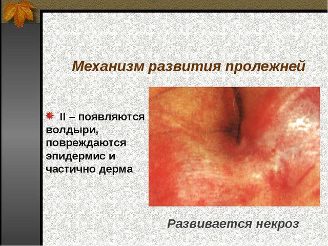II – появляются волдыри, повреждаются эпидермис и частично дерма Механизм ра...
