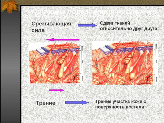 Причины образования пролежней Срезывающая сила Трение Сдвиг тканей относитель...