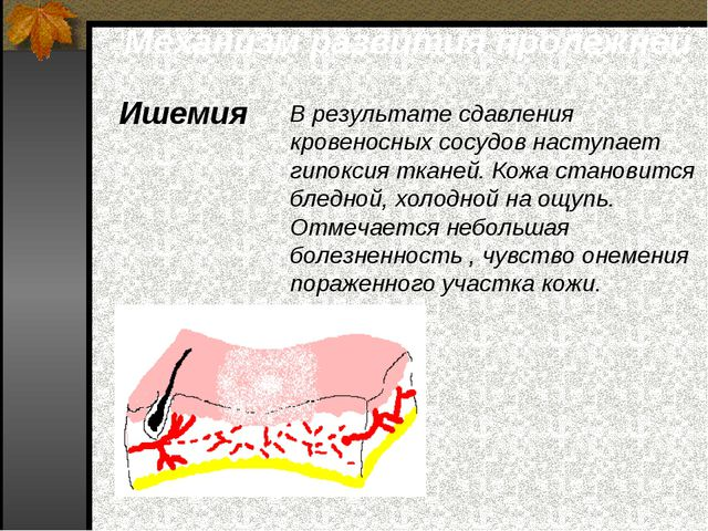 Механизм развития пролежней Ишемия В результате сдавления кровеносных сосудов...