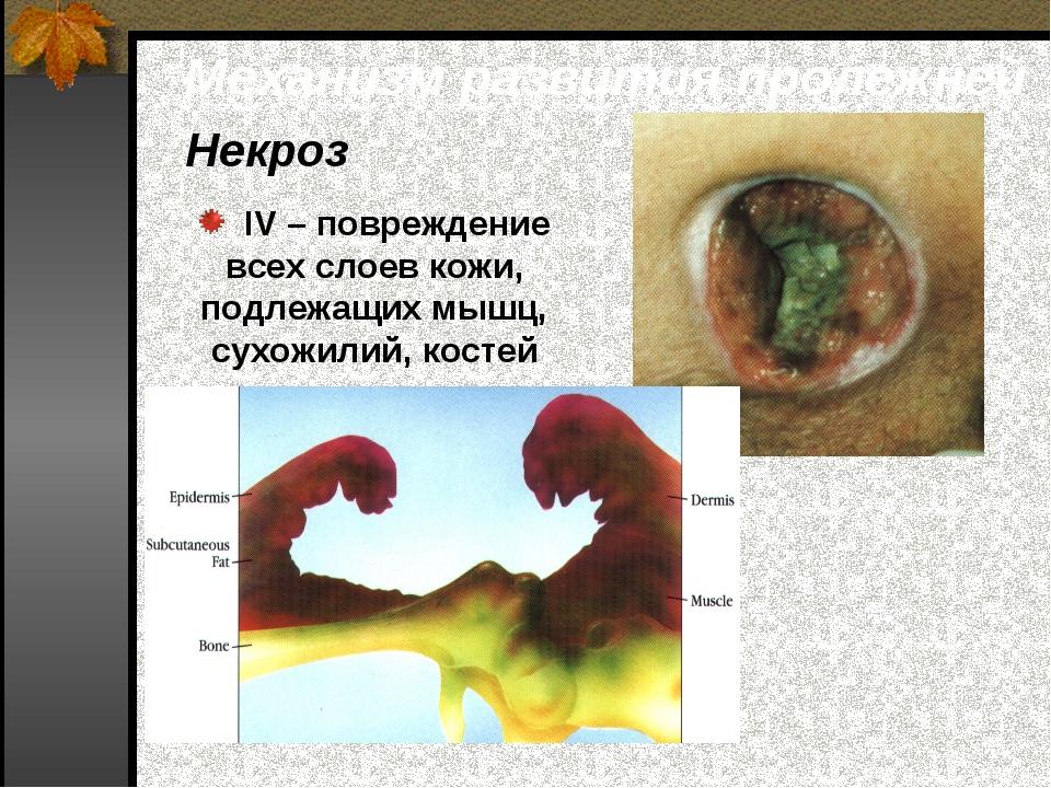 IV – повреждение всех слоев кожи, подлежащих мышц, сухожилий, костей Механиз...