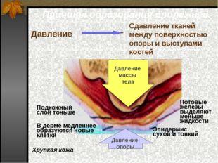 Причины образования пролежней Сдавление тканей между поверхностью опоры и выс