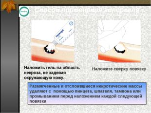 Способ применения гипергеля Наложить гель на область некроза, не задевая окру