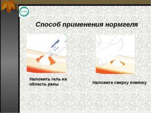 Способ применения нормгеля Наложить гель на область раны Наложите сверху повя