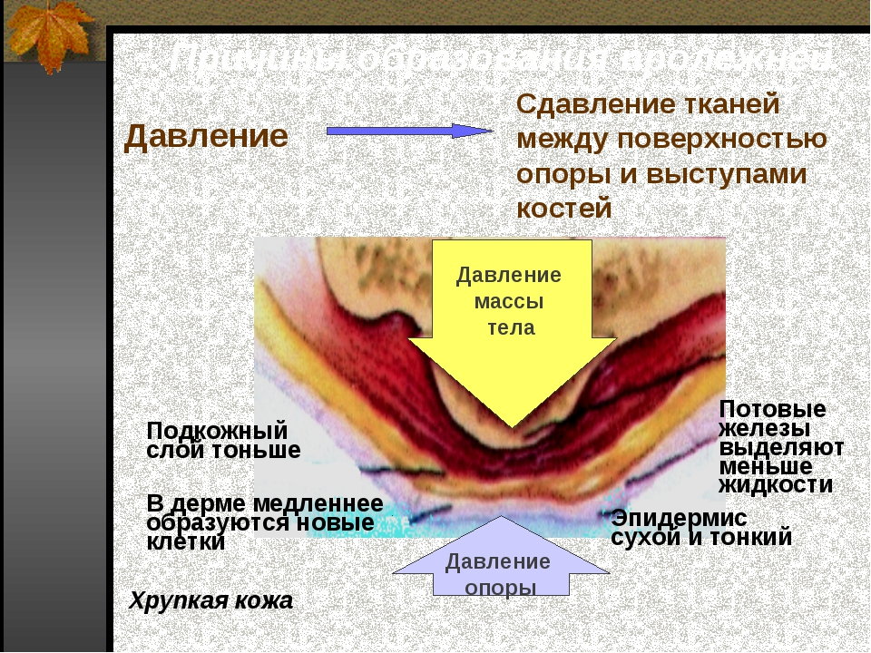 Причины образования пролежней Сдавление тканей между поверхностью опоры и выс...