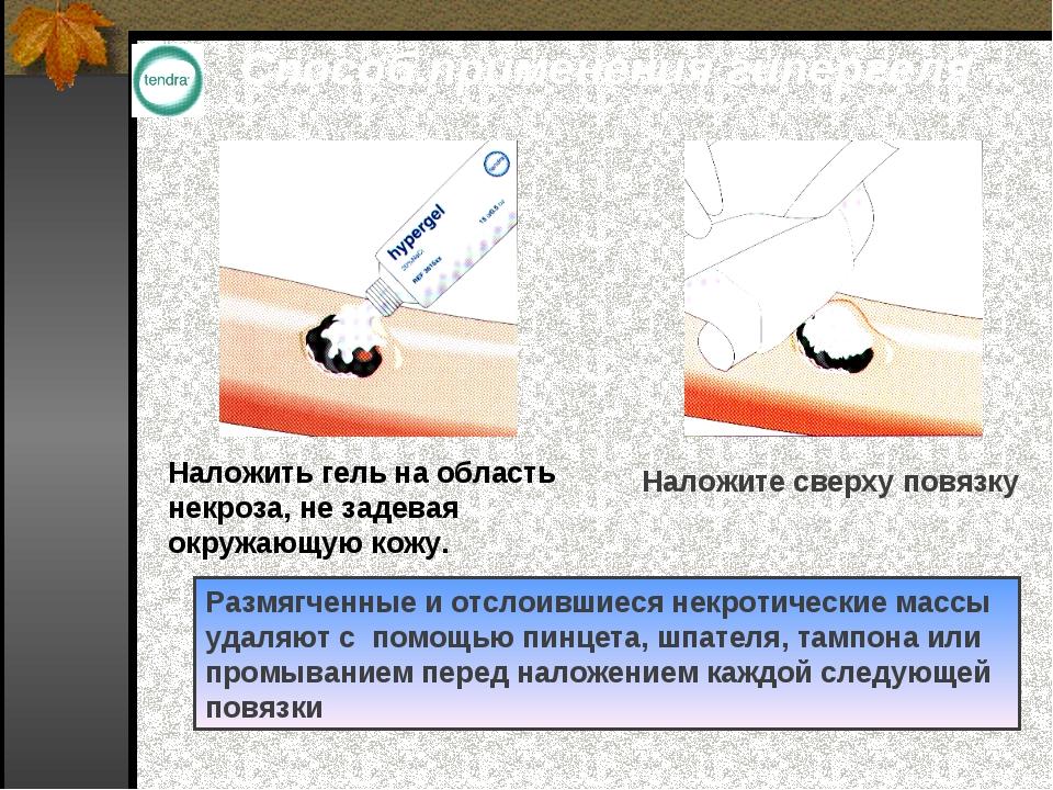 Способ применения гипергеля Наложить гель на область некроза, не задевая окру...