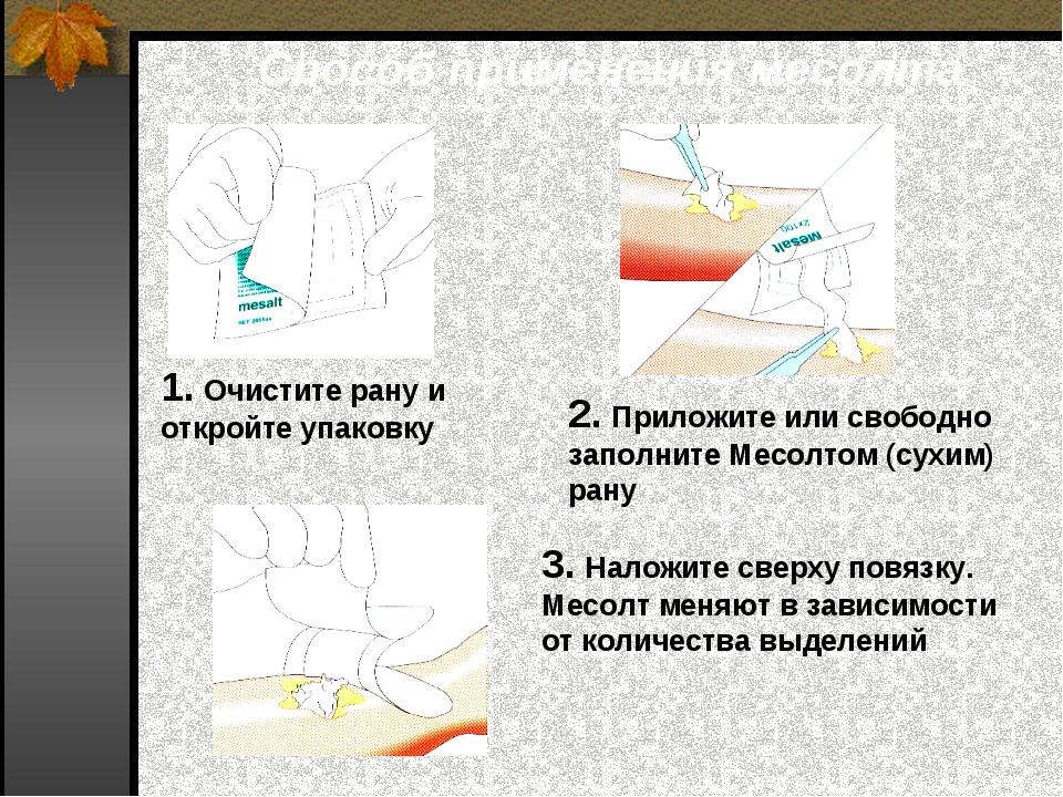Способ применения месолта 1. Очистите рану и откройте упаковку 2. Приложите и...