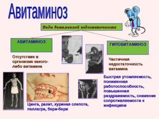 Виды витаминной недостаточности АВИТАМИНОЗ ГИПОВИТАМИНОЗ Отсутствие в организ